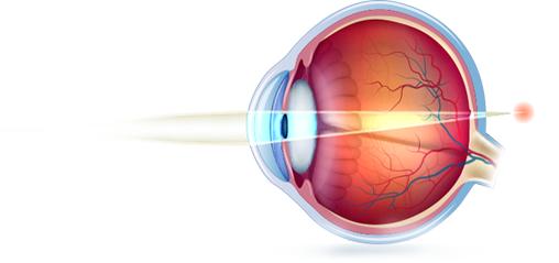 ... após os 40 anos. A visão para perto é a mais prejudicada, pois com os  objetos mais próximos do olho, o esforço da acomodação é insuficiente para  trazer ... 8d166dbb72